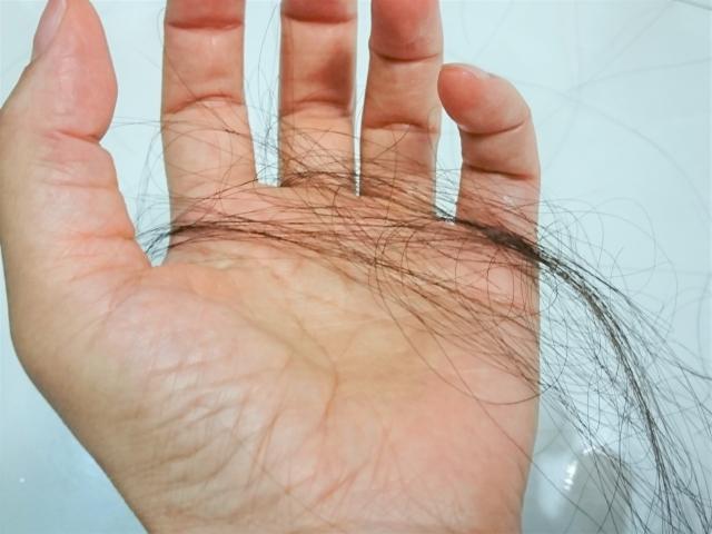 女性の抜け毛の原因とは 病気による抜け毛や対処方法についても解説 スカルプd ボーテ公式サイト アンファー